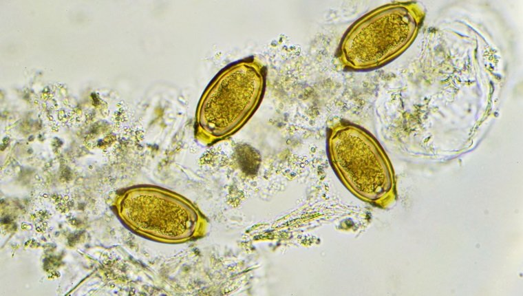 Eggs of Trichuris trichiura (whipworm) in stool, analyze by microscope